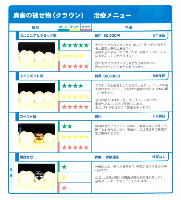 前歯 奥歯のいろいろなかぶせ物、つめ物