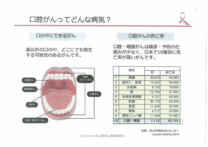 口の中にできるがん 口腔がんの死亡率