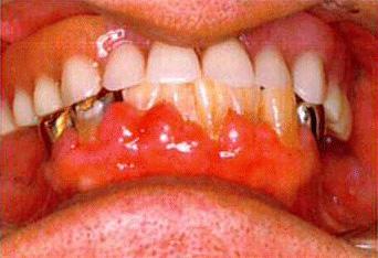ミラクルデンチャー(入れ歯のサプライズ)/レーザー治療なら